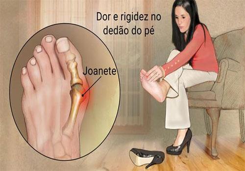 Joante