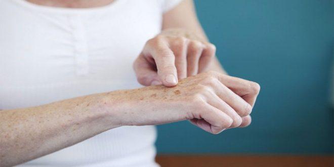 Mãos envelhecidas como amenizar